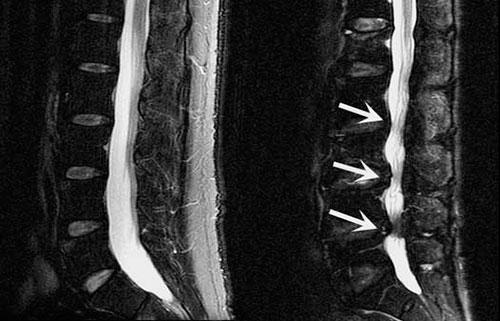 Сенноз позвоночных каналов на рентгеновском снимке