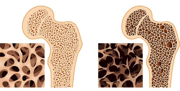 При недостатке кальция, организм начинает потреблять его из костей