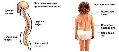 Симптомы нарушений осанки
