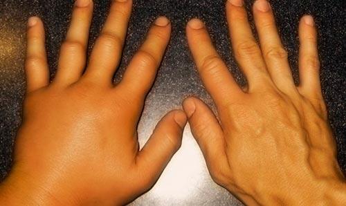 Болезнь Стилла у взрослых и детей – симптомы и лечение