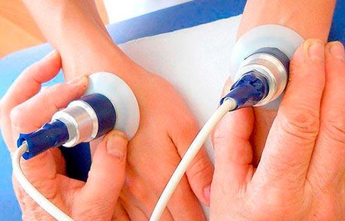 артрит 2 стадии