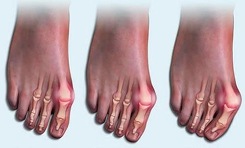 Методы лечения артроза большого пальца и других пальцев ног