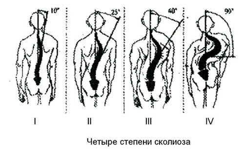 4 степени сколиоза