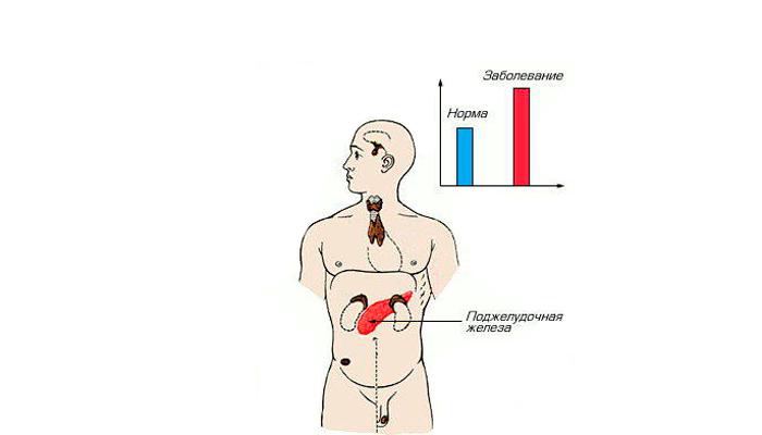 Гипогликемия из-за безмерного употребления алкоголя