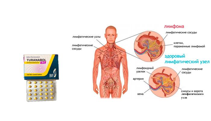 Применение препарата Туринабол при лимфоме