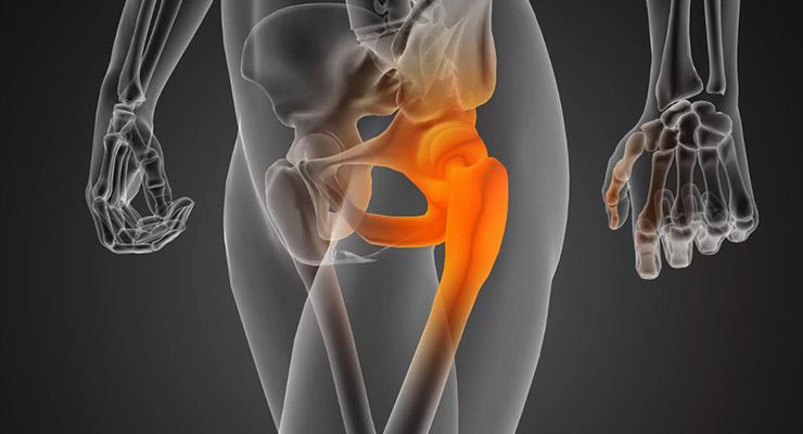 Лечение боли в тазобедренном суставе при травмах и инфекциях