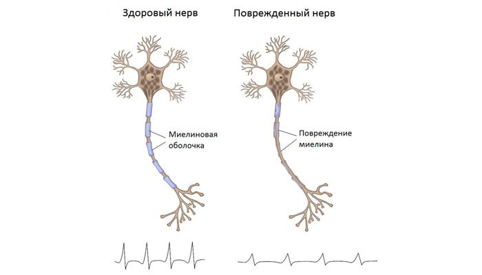 Повреждение нерва при алкогольном полиневрите
