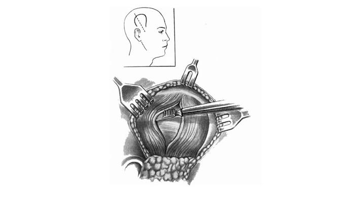 Операция для устранения отека головного мозга