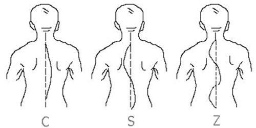 Виды сколиоза - S, C и Z