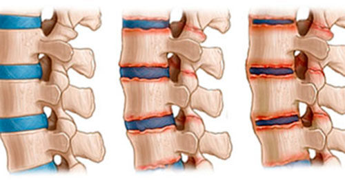 Стадии артрита позвоночника