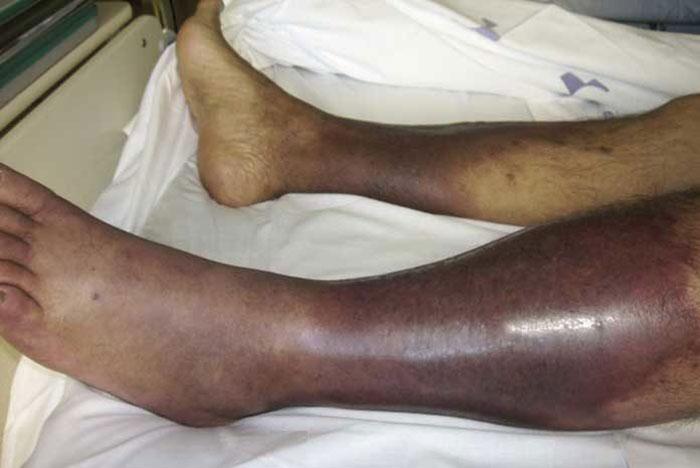 Различные инфекционные заболевания могут привести к отказу ног у алкашей