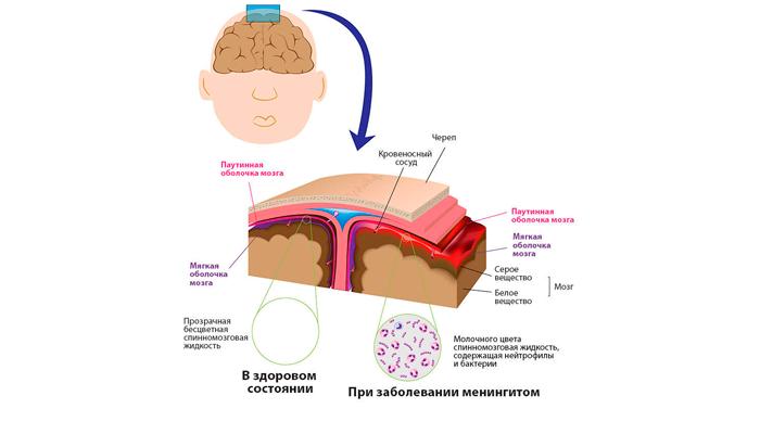 Применение препарата «Клион» при менингите