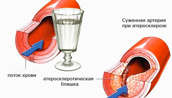 Процедура ВЛОК при сужении сосудов головного мозга