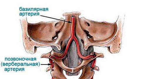 Что такое вертеброгенная компрессия позвоночных артерий