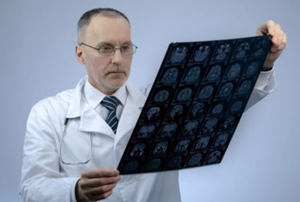 Врач держит в руках МРТ головного мозга