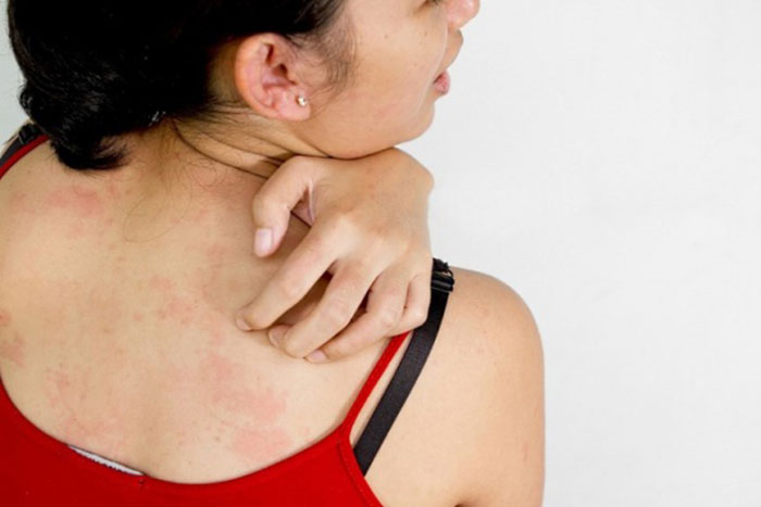 Покраснение и зуд на коже - один из частых побочных эффектов препарата Копринол