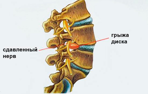 Болит мышца на спине в боку утром thumbnail