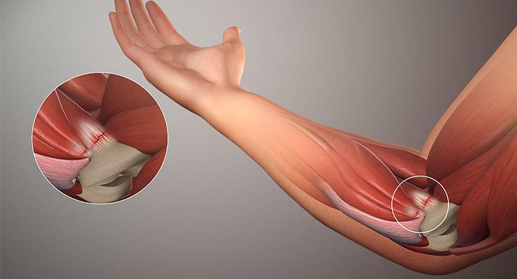 Воспаление локтевого сустава
