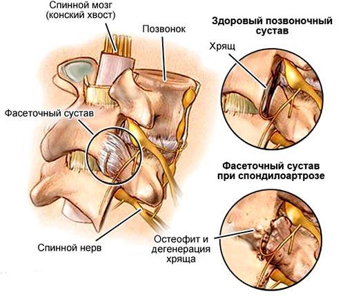 Причины развития деформирующего спондилоартроза