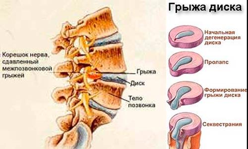 Болезни шейного, грудного и поясничного отделов позвоночника