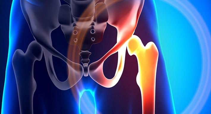 Боль в тазобедренном суставе причины, симптомы и лечение