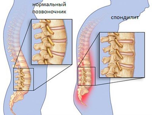 Что такое воспаление позвоночника (спондилит)