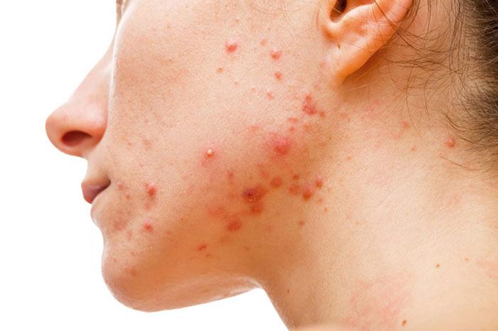 При передозировке Флуоксетином возможны проявления побочных реакций на коже