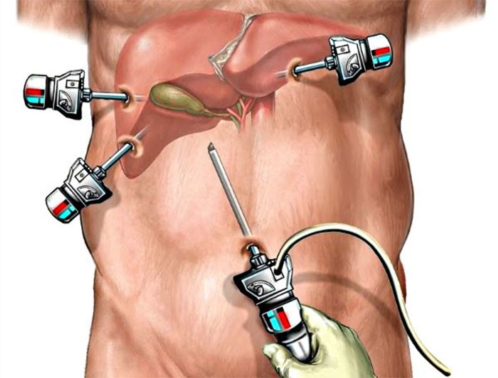 Холецистэктомия Лапароскопическая Диета. Диетические рекомендации после лапароскопии желчного пузыря