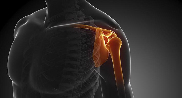 МРТ плечевого сустава как выполняется, расшифровка обследования