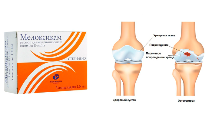 Применение Мелоксикама при остеоартрозе