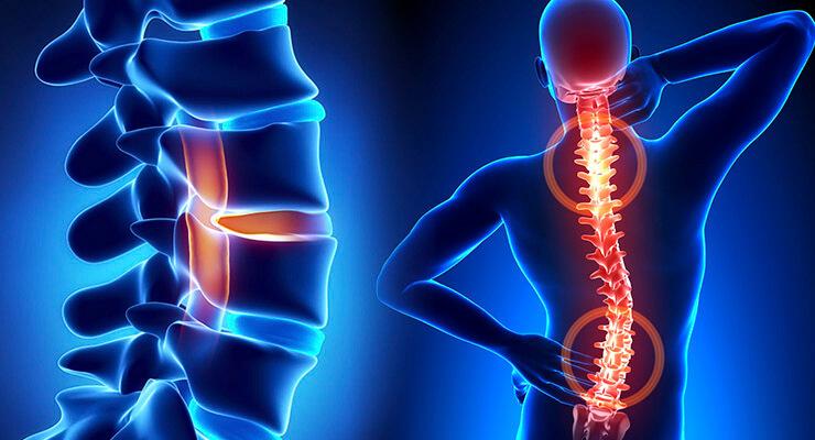 Боль под правой лопаткой– вертебрологические предпосылки