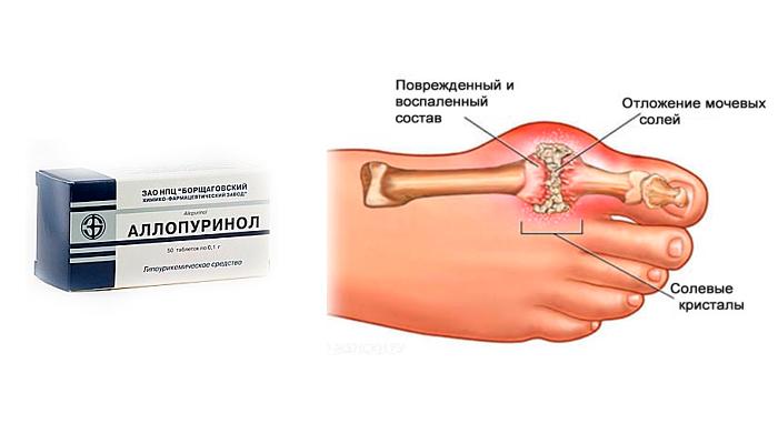Аллопуринол для лечения подагры