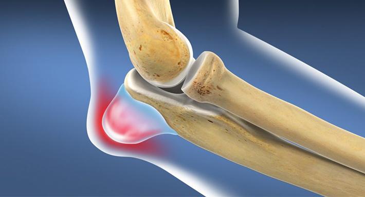 Воспаление локтевого сустава причины, симптомы и способы лечения