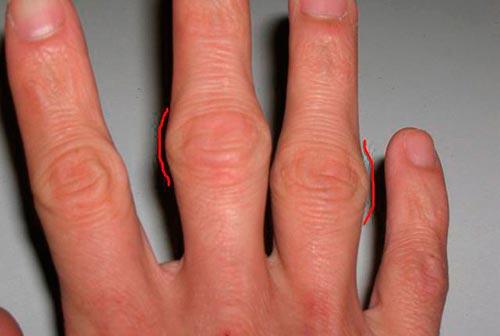 Отек пальцев рук