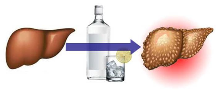Алкоголь - причина АБП