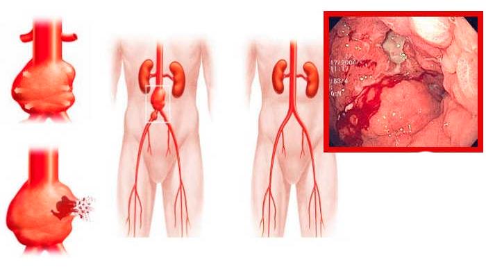 Возможные внутренние кровотечения в органах ЖКТ из-за смешивания Мелоксикама и алкоголя