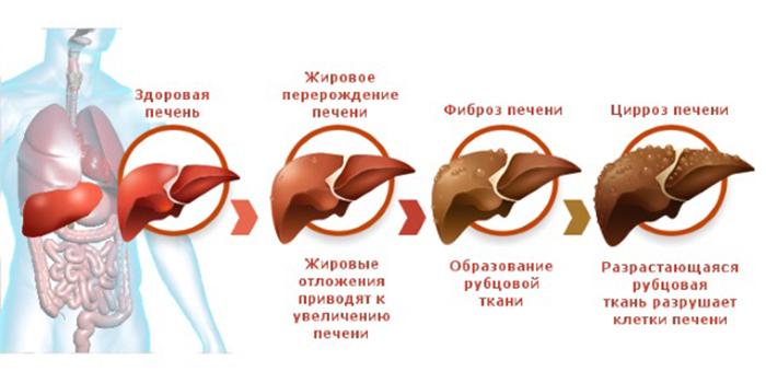 Стадии развития алкогольной болезни печени