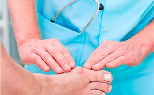 Лечение артрита ног