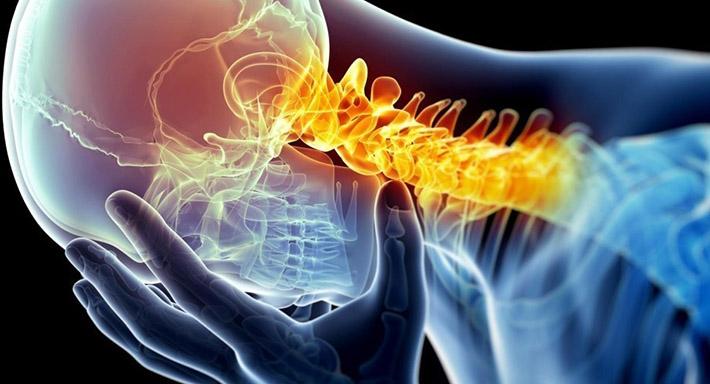 Хондроз - что такое, причины, симптомы, лечение