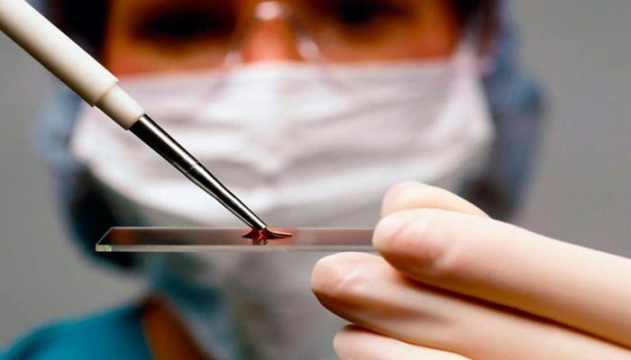 Анализ крови для диагностирования печеночной комы при циррозе печени