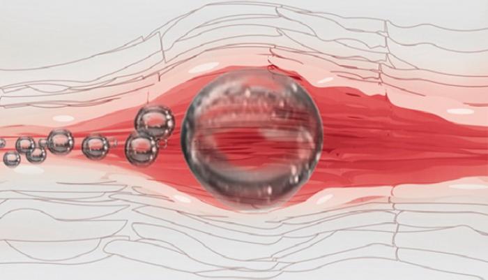 Воздушная эмболия, как один из побочных эффектов гемосорбции