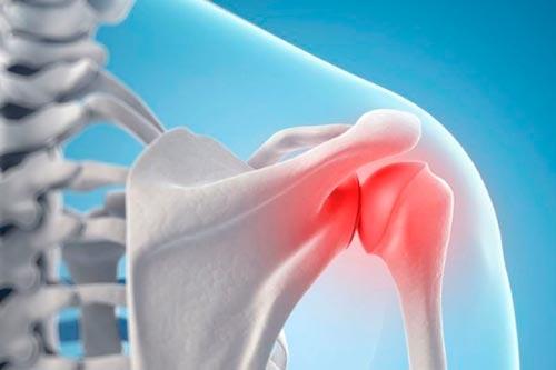 Артрит плечевого сустава причины, симптомы и методы лечения