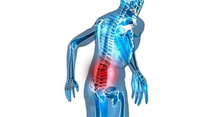Причины болей в спине в области поясницы и их лечение
