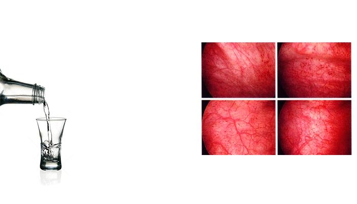 Развитие острой формы цистита в следствии употребления спиртного во время болезни