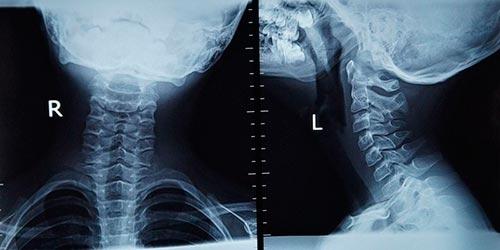Искривление шейного отдела позвоночника и его лечение
