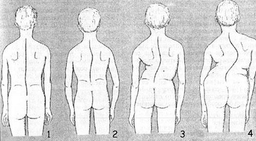 Этапы развития сколиоза