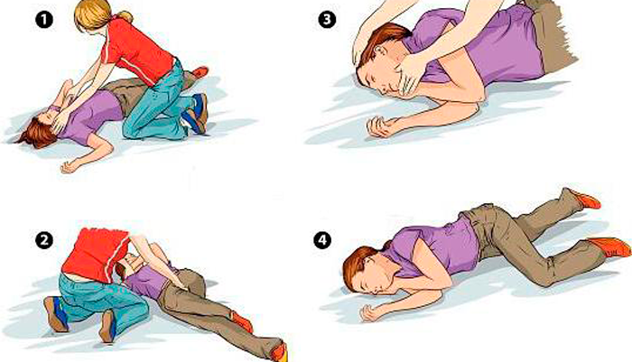 Первая помощь человеку находящемся без сознания при алкогольном отравлении