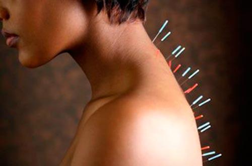 Терапия жжения в шее