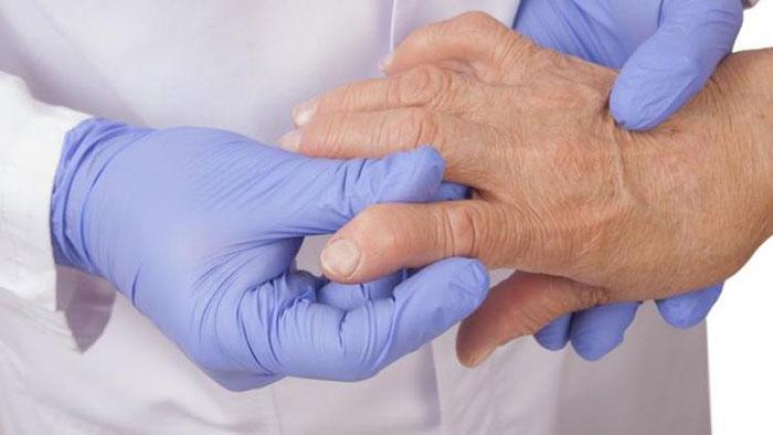 Помимо онкологии Метотриксат успешно применяется при ревматоидном артрите