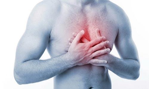 Лечение грудного радикулита